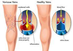 Эту болезнь в восточной медицине связывают с болезнью Холода, опустившегося в нижнюю часть тела.