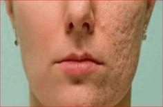 Dieses Mittel lässt jede Narbe, Fältchen und Flecken auf Ihrer Haut in wenigen Minuten verschwinden, How To Remove Pimples, Remove Acne, Remove Stains, Pimple Scars, Acne Scars, Facial Scars, Scar Remedies, Natural Remedies, Skin Tightening Cream