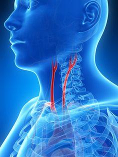 Symptome eines Schlaganfalls - Besser Gesund Leben