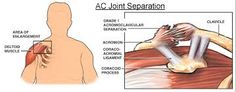 The #acromioclavicular (AC) #joint is a joint at the highest point of the shoulder that is included for the most part of two noteworthy ligaments and four embellishment ligaments.