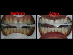 Zoom Whitening Before & After Zoom Whitening, Teeth Whitening, Simi Valley, Cosmetic Dentistry, Dental Care, Appointments, Halloween Face Makeup, Tooth Bleaching, Dental Caps