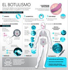 Botulismo, patogenia.