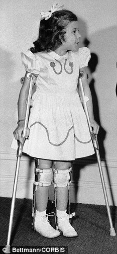 polio   How polio has returned to haunt its victims in old age