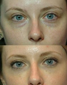 Face Reflexology For Reducing Black Circles, Eye Lines, And Swollen Eye Bags