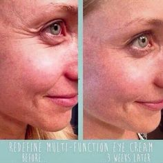 Results after she used Eye cream for 3 weeks.