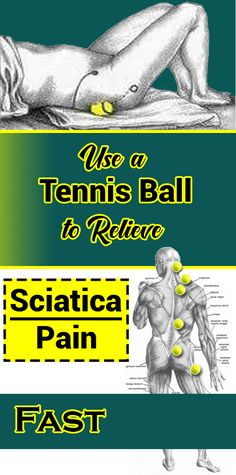 Use a Tennis Ball to Relieve Sciatica Pain Fast - Women Daily Magazine Health And Wellness, Health Tips, Health Fitness, Lemon Benefits, Health Benefits, Nerve Pain, Sciatic Nerve, Sciatic Pain, Acupressure