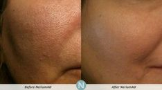 Nerium results! #nerium #skincare #beauty [Nerium Optimera dramatically reduces the appearance of fine lines and wrinkles, discoloration, uneven skin texture, enlarged pores and aging or loose skin, without the use of harmful ingredients. You can feel confident that what you're using is good for you and good for your skin.]