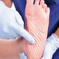 Prevent Diabetes Foot Problems Through 5 Easy Ways #diabetes
