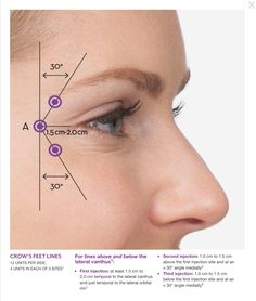 Laser hair elimination is epilation by laser or with the usage of an unique light. Besides the body, specific kinds of laser hair elimination might securely be utilized to reduce facial hair as well. Botox Injection Sites, Botox Injections, Botox Fillers, Dermal Fillers, Face Dermal Piercing, Botox Lips, Botox Face, Allergan Botox, Relleno Facial