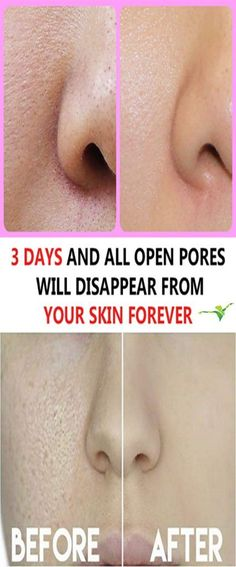 We all have millions of skin pores on our skin however they are not visible