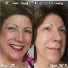 What If Wednesday?What if you can achieve amazing results like fellow Rodan + Fields Consultant, Su Buehler Canning. In her before pic, she's wearing FULL MAKEUP. After 12 months of consistently us(Best Makeup Done) Redefine Regimen, Rodan And Fields Redefine, Macro Exfoliator, Amp Md Roller, Rodan And Fields Business, Rodan And Fields Consultant, Full Makeup, Thing 1