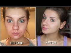 HOW I GOT CLEAR SKIN: treating adult acne with Paula's Choice RESIST Skincare -  CLICK HERE for the Acne No More program #acne #acnecure #acnetips #acnecare I N S T A G R A M F A C E B O O K T W I T T E R V L O G C H A N N E L S N A P C H A T @samalamx0 Check out Paula's Choice:  Thank you Paula's Choice for featuring me!  Grab a $9 trail size of the 2% BHA Liquid (my ... - #Acne