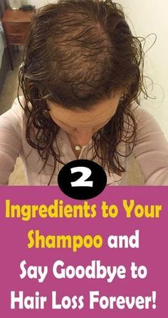 Simply add these 2 ingredients to your shampoo and say goodbye to hair loss forever. – Healthy Beauty Guide : Simply add these 2 ingredients to your shampoo and say goodbye to hair loss forever. Hair Remedies For Growth, Hair Loss Remedies, Baking Soda Shampoo, Homemade Shampoo, Prevent Hair Loss, Strong Hair, Tips Belleza, How To Make Hair, Healthy Hair