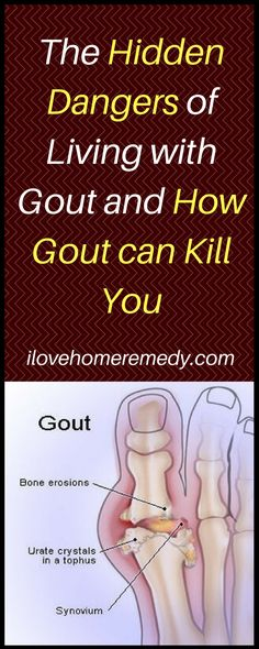 I thought this was an important topic to share with you because the reality is that most people simply don't realize how dangerous gout really is to their health.