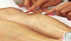 Varicose Veins Remedies Varicose veins (also known as spider veins) is a vein disease which is characterized with twisted and swollen veins. The problem is mostly aesthetic, but it may also indicate a serious cardiovascular problem! The treatment is Varicose Vein Remedy, Varicose Veins, Poor Circulation, Blood Pressure Remedies, Natural Home Remedies, Natural Treatments, Health Remedies, Healthy Tips, Health Tips