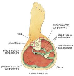 Anatomy of compartment syndrome
