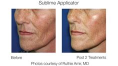 Pre and Post-Treatments Image Sublime Applicator