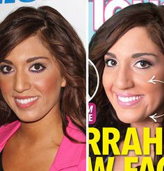 Has Farrah Abraham Gone Too Far With Her Plastic Surgeries....Not much of a difference to me.  I liked her old chin!