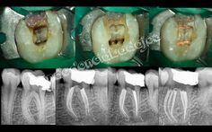 apertura endodoncia primer molar inferior - Buscar con Google