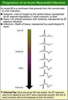 Progression of Acute Myocardial Infarction (AMI) on ECG Ekg Interpretation, Nursing Information, Myocardial Infarction, Critical Care Nursing, Cardiac Nursing, Nursing School Notes, Emergency Medicine, Nursing Tips, Health And Fitness