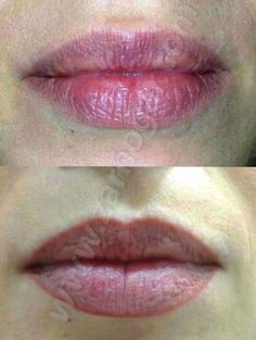 Micropigmentación de labios. Antes y después. Se puede apreciar que los tonos utilizados son tan naturales, que nos permiten modificar la forma y hacerla más simétrica, sin que se note en exceso.