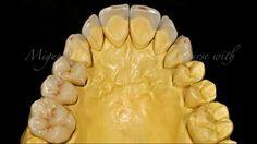 Cosmetic Dentistry, Art Supplies, Anatomy, Tooth, School, Dental Veneers, Dental Laboratory, Teeth, Studio
