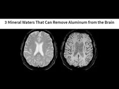 3 Mineral Waters That Can Remove Aluminum from the Brain   Natural Remedies Published on Jan 23, 2017