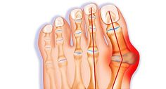 Bunions can cause pain and even lead to serious conditions like arthritis. Find out how to know when you may have the condition and what to do about it.