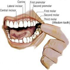 how to clean wisdom teeth sockets with syringe