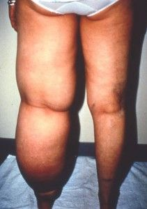 Primary lymphedema. Redness, warmth & pain of the affected leg can indicate infection, a condition for which pts c lymphedema are at risk