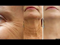 Anti-aging, tighten the upper skin, transform your skin, and look at youth Image Skincare, Varicose Veins Treatment, Neck Wrinkles, Wrinkle Remedies, Ribbon Flower Tutorial, Skin Tightening, Tips Belleza, Face Skin, Beauty Skin