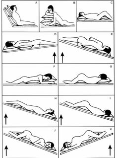 Chest PT positions Dependent on lobe being drained and contraindications to treatment