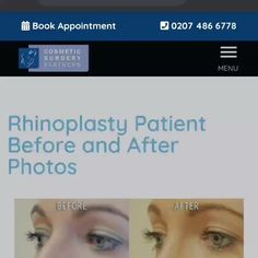 Interested in rhinoplasty surgery? Our website includes; ✅ Before and after result photos ✅ Patient case studies ✅ FAQ sections Call to learn more 020 7486 6778 #Rhinoplasty #Rhinoplastybeforeandafter #cosmeticsurgerypartners #facialplasticsurgery #lifechanging #londonplasticsurgeon #plasticsurgeon #rhinoplasty #rhinoplastyadvice #rhinoplastybeforeandafter #rhinoplastydiary #rhinoplastyexpert #rhinoplastyexperts #rhinoplastygallery Facial Cosmetic Surgery, Rhinoplasty Before And After, Rhinoplasty Surgery, Plastic Surgery, Skin Care, Cosmetics, Skincare Routine, Skins Uk