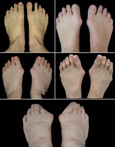 This picture illustrates various degrees of bunion deformity from mild to severe. Bunions (also known as Hallux Valgus) get worse over time.