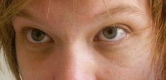 Dark Eye Circle Cream - http://womenenhancements.com/dark-eye-circle-cream/