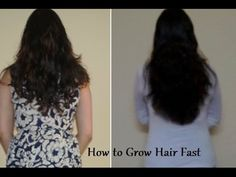 HOW TO MAKE YOUR HAIR GROW FASTER THAN EVER – 1 INCH IN A WEEK - Healthy Food Headlines