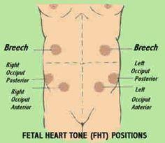 Fetal Heart Tone Positions...NCLEX question...