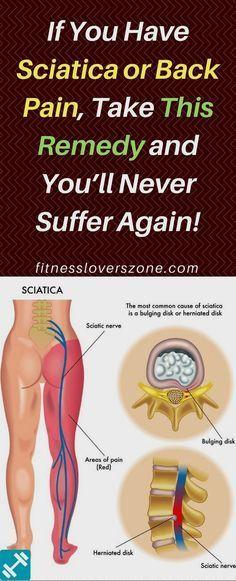 pierde în greutate sciatica
