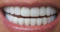 Зубной камень: Как вы можете удалить его самостоятельно, не посещая стоматолога