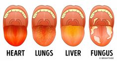 13Things Your Tongue IsTrying toTell You About Your Health