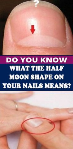 Do You Know What The Half Moon Shape On Your Nails Means The Answer Is More Important Than You Think – Health and Wellness Natural Remedies For Allergies, Allergy Remedies, Natural Headache Remedies, Natural Remedies For Anxiety, Anxiety Remedies, Health Remedies, Natural Cures, Natural Beauty, Asthma Remedies