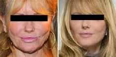 You can look up to 15 years younger with the newest anti-wrinkle scientific discovery Bbc, Anti Wrinkle, High Society, Beauty Hacks, Veronica, Hair Beauty, Make Up, Beleza, Faces