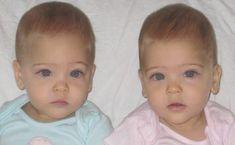 7 enkla tips som tar bort slem i hals, näsa och lungor (direkt resultat) World's Most Beautiful, Beautiful Family, Beautiful Children, Twin Girls, Twin Sisters, First Photo On Instagram, Little Babies, Little Girls, Identical Twins