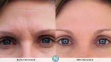 Ready for results like these?  Try the product for free!  Check it out! http://franmoore.theneriumlook.com