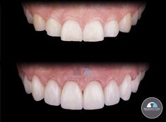 Transform your smile with dental crowns! If you don't like the lenght, shape and overall appearence of your teeth, come to Advanced Smiles Dentistry to know all your cosmetic options to improve your smile! You can contact us at ⬇ (619) 488-1557 📞 (664) 634-3978 📞 frontdesk@advancedsmilesdentistry.com 📧 www.advancedsmilesdentistry.com 🌐 . . . . . #smiledesign #cosmeticdentistry #dentist #compositeveneers #newsmile #dentalcrown #smiledesigner #dentistry #dentalimplants #teeth… Implant Dentistry, Cosmetic Dentistry, Dental Implants, Composite Veneers, Smile Design, Dental Crowns, Your Smile, Teeth, Tooth