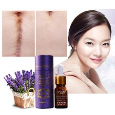 Scar Repair Oil Lavender Essence 100% Natural Pure Remove  Burn  Marks Scar Removal 10ML