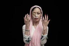 L'Iris d'Or photographer Asghar Khamseh's image of a victim of acid-throwing.