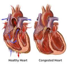 Treatment of Congestive Heart Failure