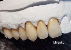 Dental Anatomy, Teeth Shape, Smile Dental, Dental Art, Dentistry, Shapes, Health, Handmade, Dental Laboratory