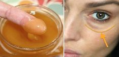 This Mixture Will Remove Dark Circles And Eye Bags In Just 15 Minutes! - - - In a list of the skin problems dark circle comes in top 5 issues. Millions of pe. Dark Circles Under Eyes, Dark Under Eye, Beauty Hacks For Teens, Diy Beauty, Beauty Style, Homemade Beauty, Beauty Ideas, Healthy Skin, Healthy Tips